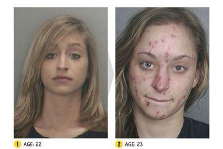 фото девушки до и после приема наркотика