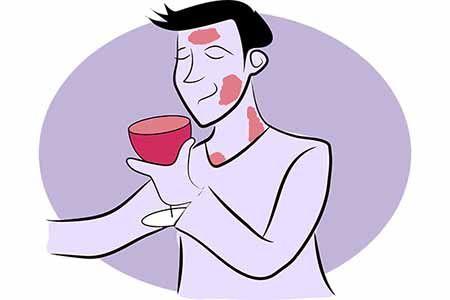 Аллергия на алкоголь и красные пятна: фото после употребления