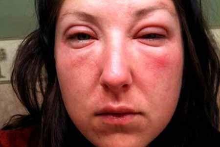 Эпитермические проявления на лице