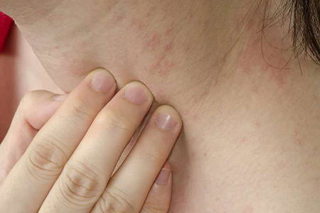 алергия на шее