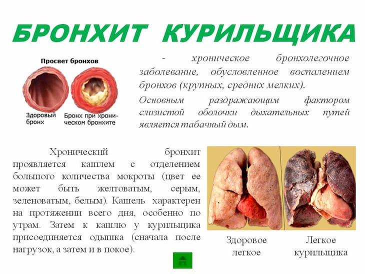 Бронхит курильщика — хроническое воспаление органа
