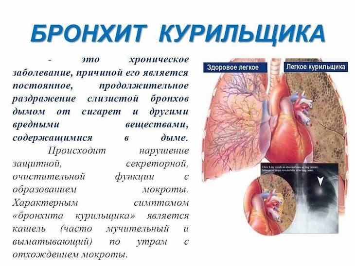 Бронхит курильщика является хронической болезнью