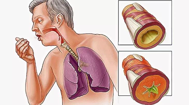 Бронхит у курильщиков вызывает сильный кашель