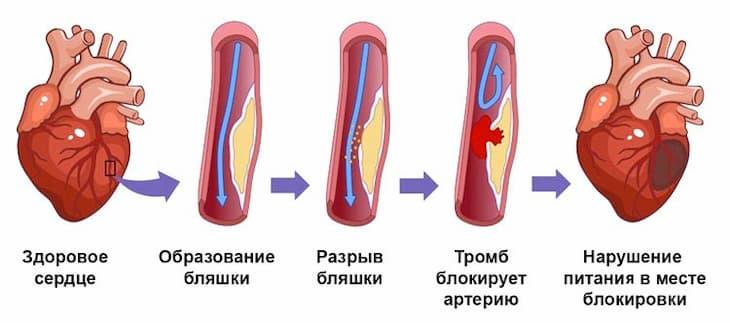 Инфаркт может повториться, если продолжать курить