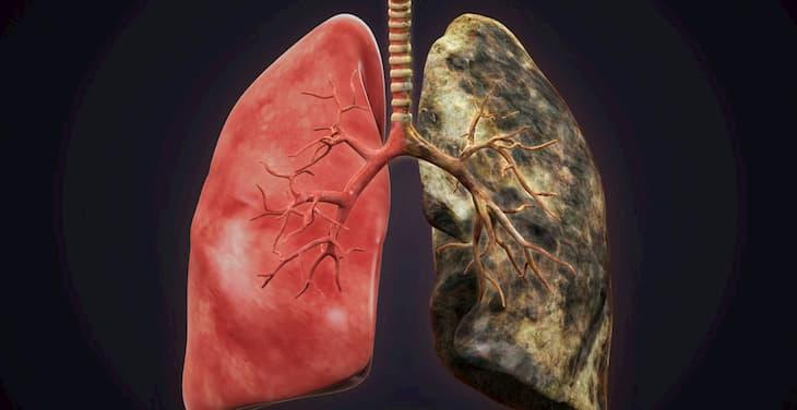 Кашель у курильщиков возникает в легких
