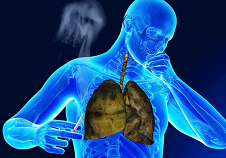 Когда бросил курить выводится мокрота и начинается кашель