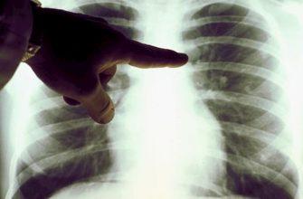 Курение и рак легких тесно взамосвязаны