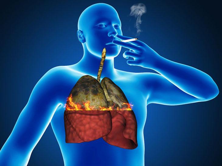 Курение и туберкулез тесно взаимосвязаны