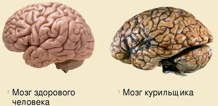 Курение негативно влияет на мозг и память