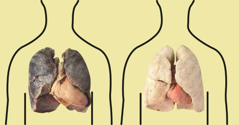 Курение сильно вредит легким человека