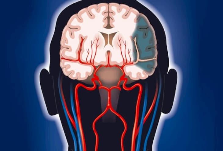 Курение вредит сосудам головного мозга