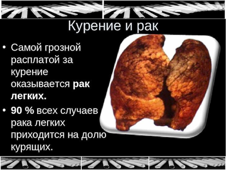 Курение вызывает рак легких и других органов