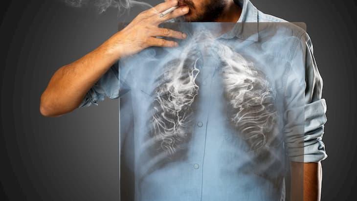Легкие после курения болят по разным причинам