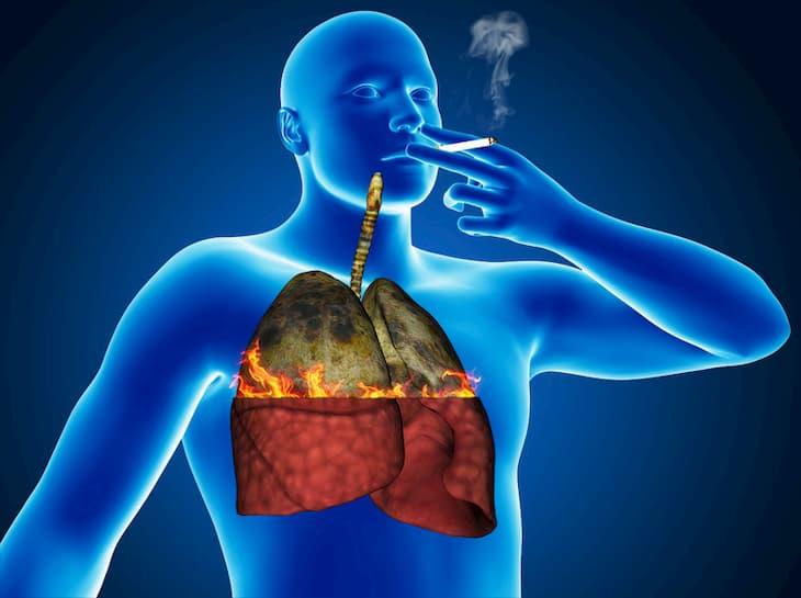 Легкие у курильщиков болят именно от сигарет