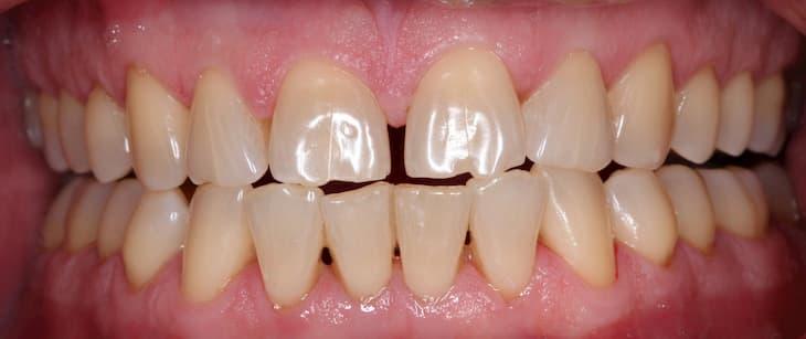 Налет курильщика на зубах распространенное явление