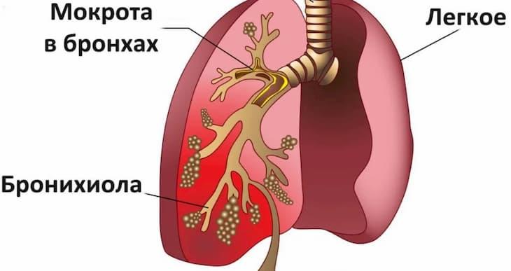 От курения при кашле может выделяться мокрота