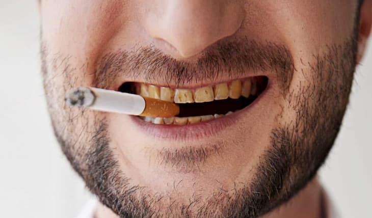 От курения у кульщиков зубы желтеют и появляется налет