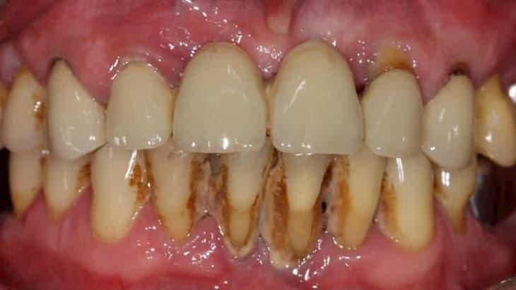 От налета курильщика на зубах непросто избавиться
