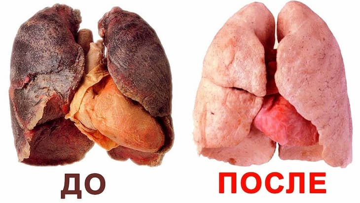 После отказа от курения легкие восстанавливаются