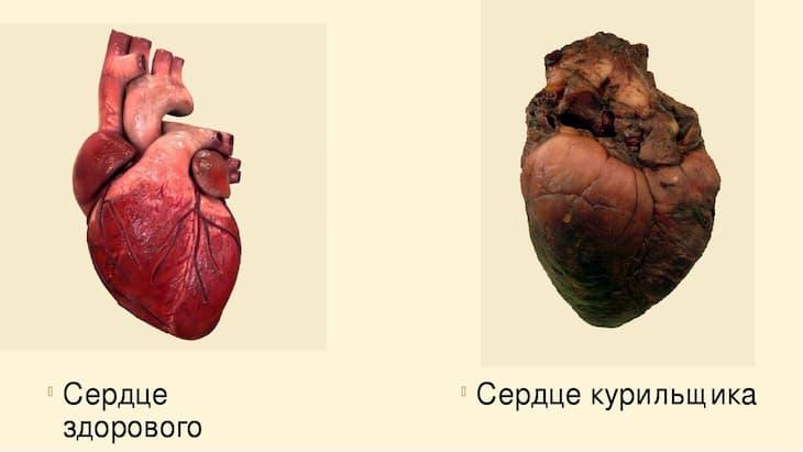 Результат влияния курения на сердечно сосудистую систему