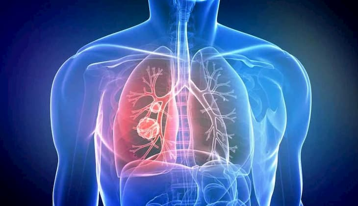 Со временем кашель пройдет и дыхательная система восстановится
