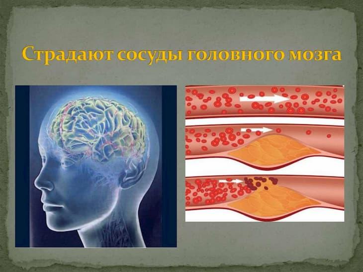 Сосуды головного мозга сужаются от длительного курения