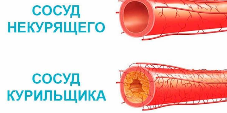 В итоге курение сильно сужает сосуды, а не расширяет