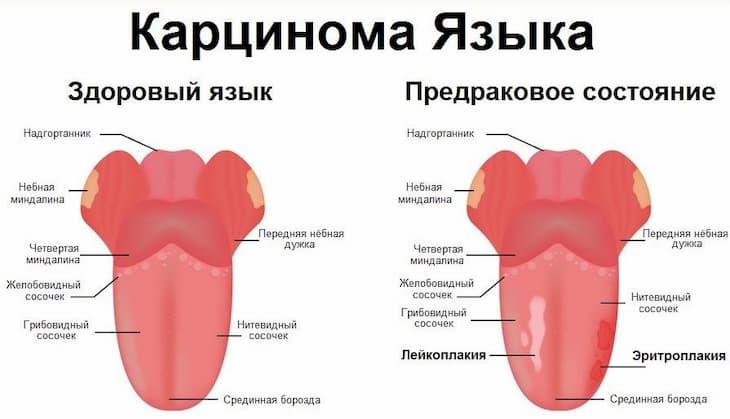 Язык у курильщика подвержен риску онкологии